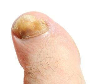 how to get rid of toenail fungus with bleach