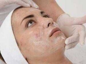 Cemical peeling for acne scars