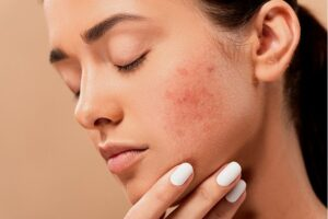 painful acne