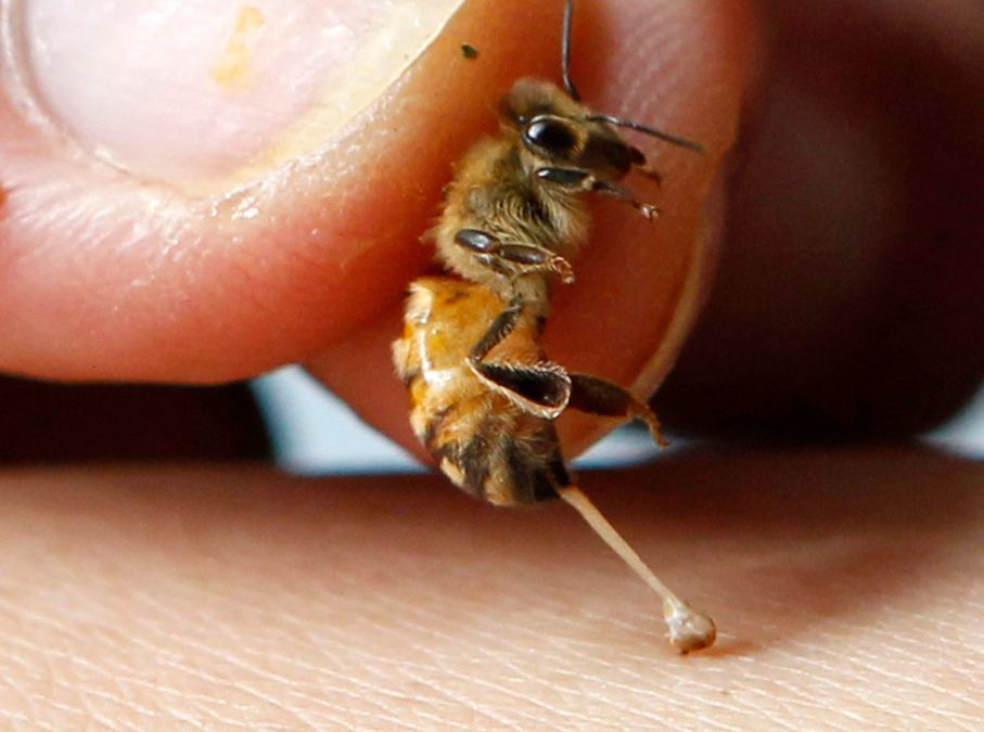 Bee And Wasp Stings Mustard Applied Topically