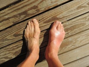 symptoms of sore ankles after running