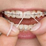 How many times a day you should floss