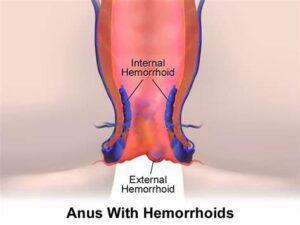 Hemorrhoids high fiber diets
