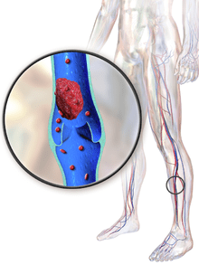 DVT treatment is a major benefit of sleeping with legs elevated