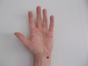 pressure points for anxiety