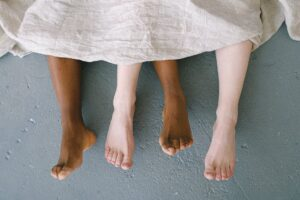 Skin discoloration on legs