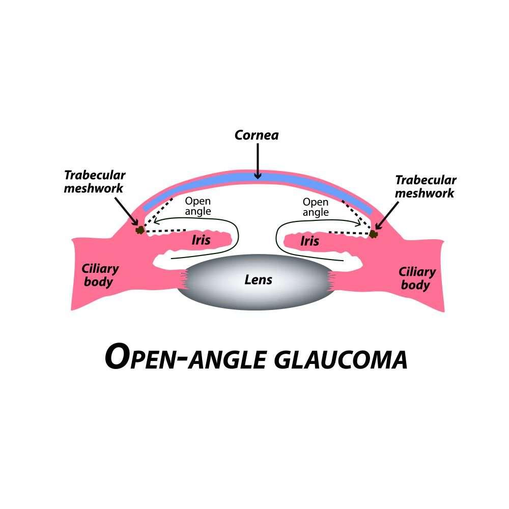 open angle glaucoma